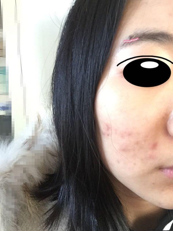 本人发型脸上长很多痘,?-王山而的回答半女生女生扎图片