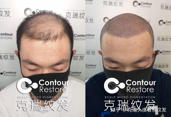 爸爸秃头如何有效生发?