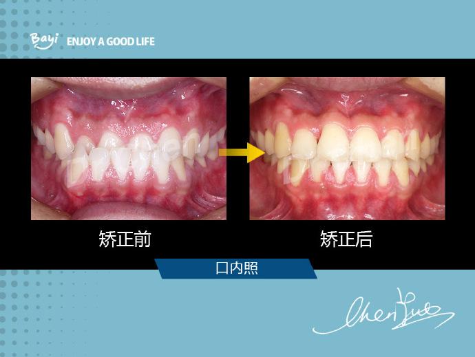 重庆牙齿矫正:〈地包天(反颌)〉图片