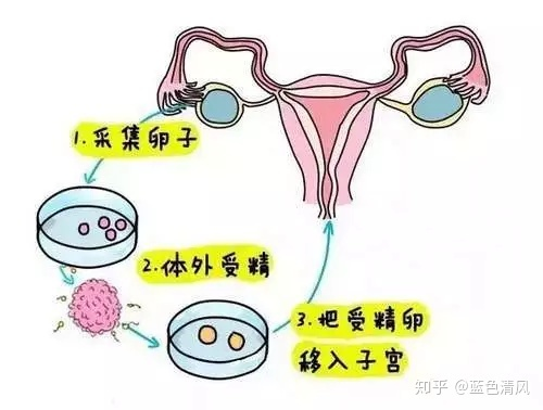 鹿泉能不能做助孕试管婴儿?国内做一次试管多少钱?(图6)