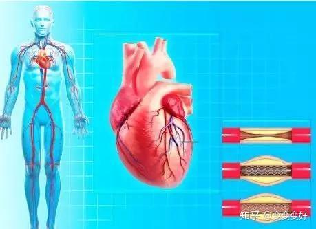 心脏不舒服可能不是心脏病,考虑为心脏神经官能症