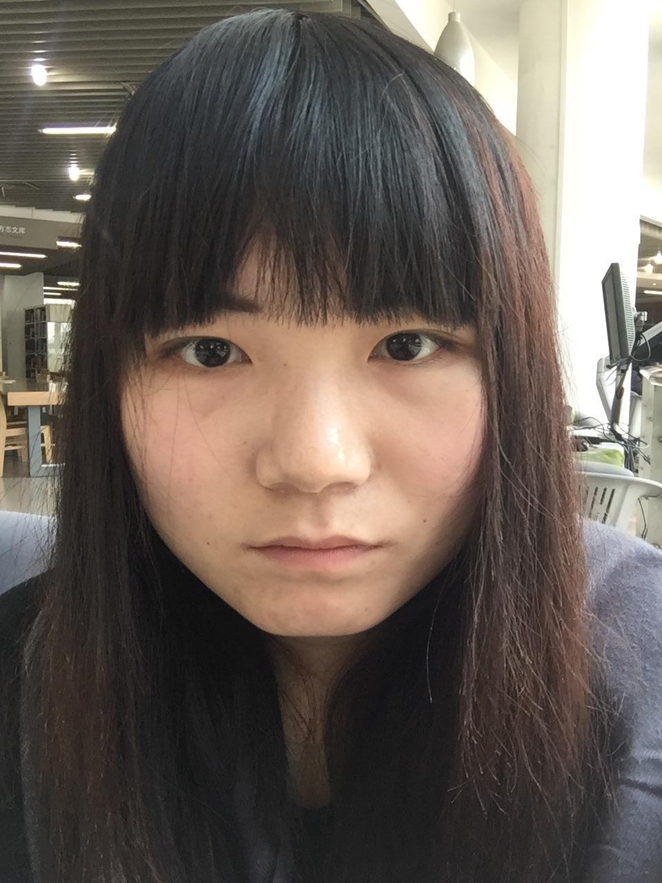 重64kg,26岁,长期熬夜,皮肤明显,体重下垂,现在眼袋v皮肤率肥图片
