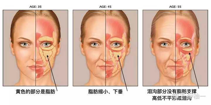 拿掉滤镜,比黑眼圈眼袋更可怕的是泪沟和法令纹!(图9)