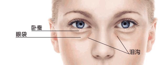 拿掉滤镜,比黑眼圈眼袋更可怕的是泪沟和法令纹!(图8)