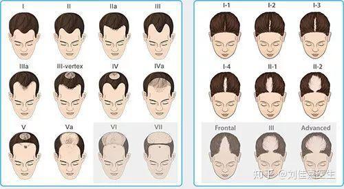 怎么判断是不是脂溢性脱发?