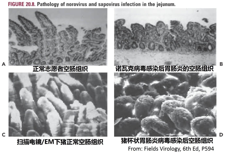 卫生学校_急性胃肠炎病毒1——诺如病毒 - 知乎
