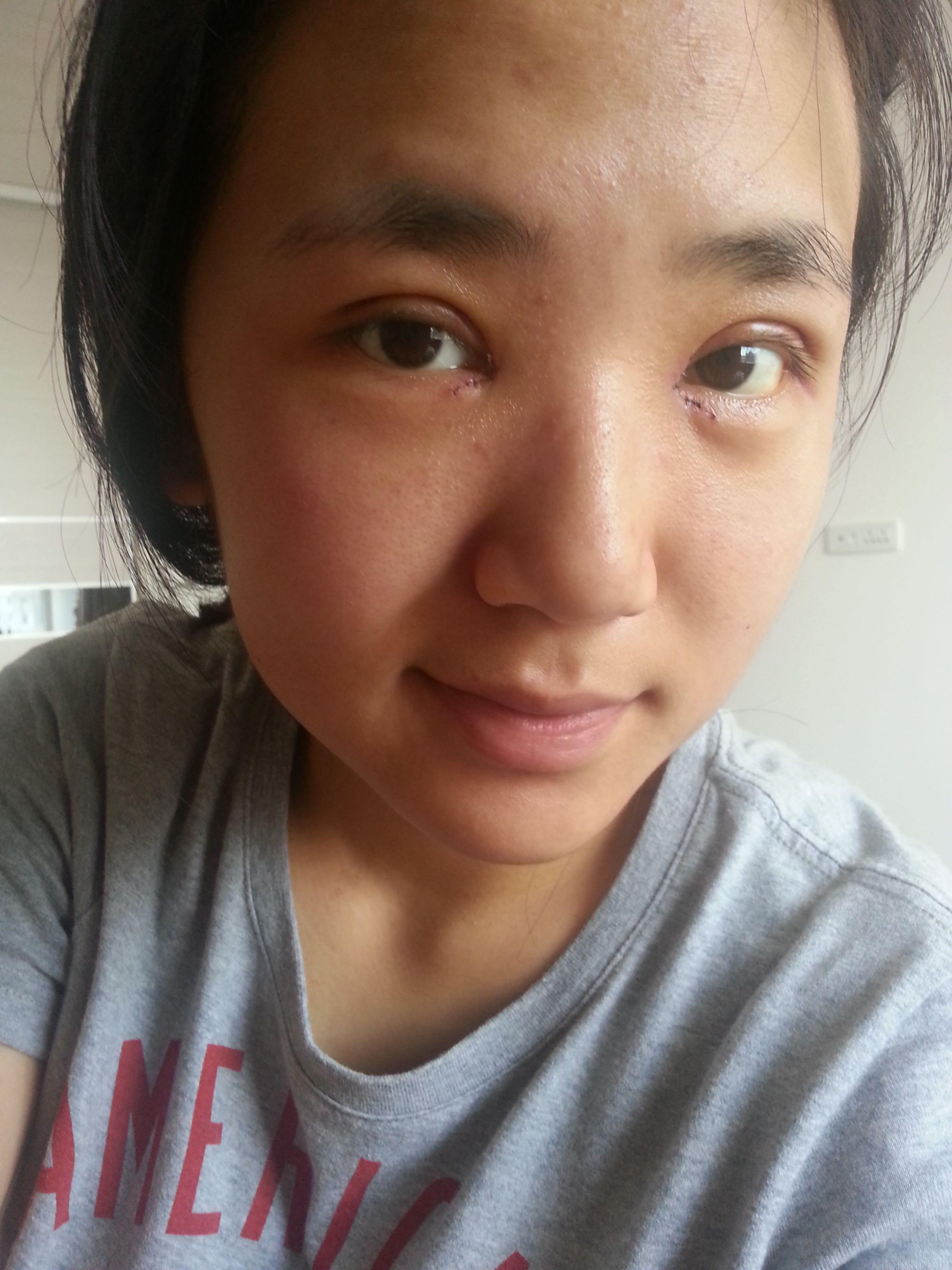 刚刚割完双眼皮之后的样子_割双眼皮后对面部整体会有很大变化么? - 知乎