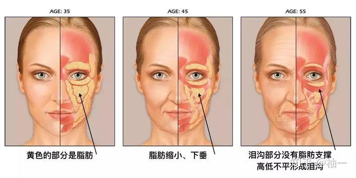 拿掉滤镜,比黑眼圈眼袋更可怕的是泪沟和法令纹!(图10)