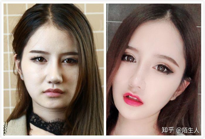 上海做双眼皮手术,我们该怎么选择?