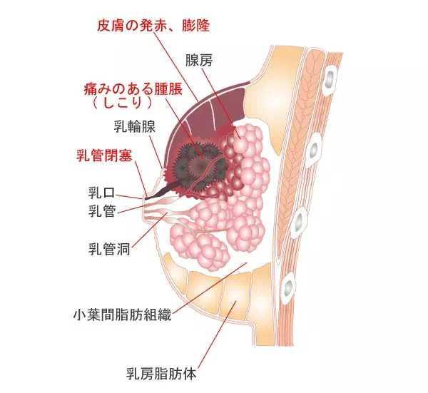 哺乳期乳腺炎,生命中不可承受之痛。