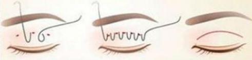 做双眼皮手术多久才能恢复(双眼皮术后多久可以恢复)插图(1)