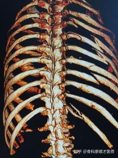症状 肋骨 骨折