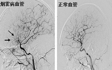 媒体报道:名医专访 郑州大学第一附属医院李红伟:烟雾病诊断与治疗
