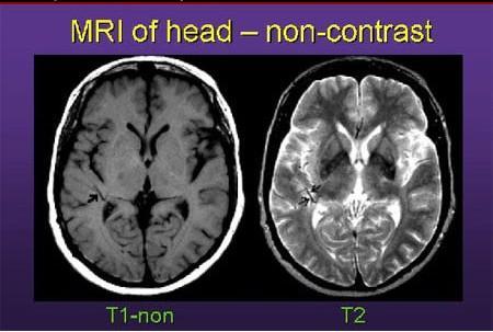 核磁共振和CT区别是什么?对人体来说有辐射么