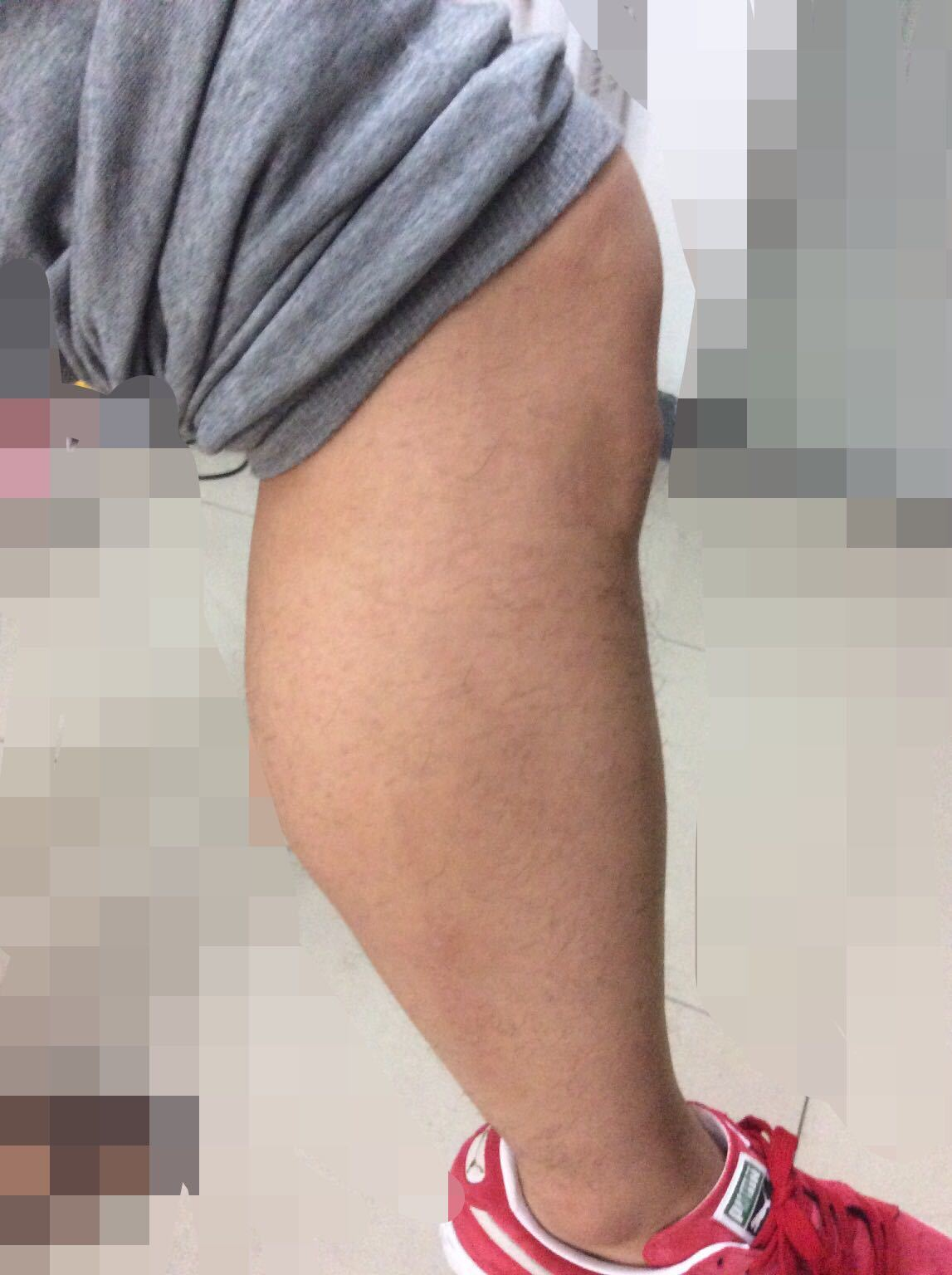 男生小腿肌肉怎么减呢 - 京东