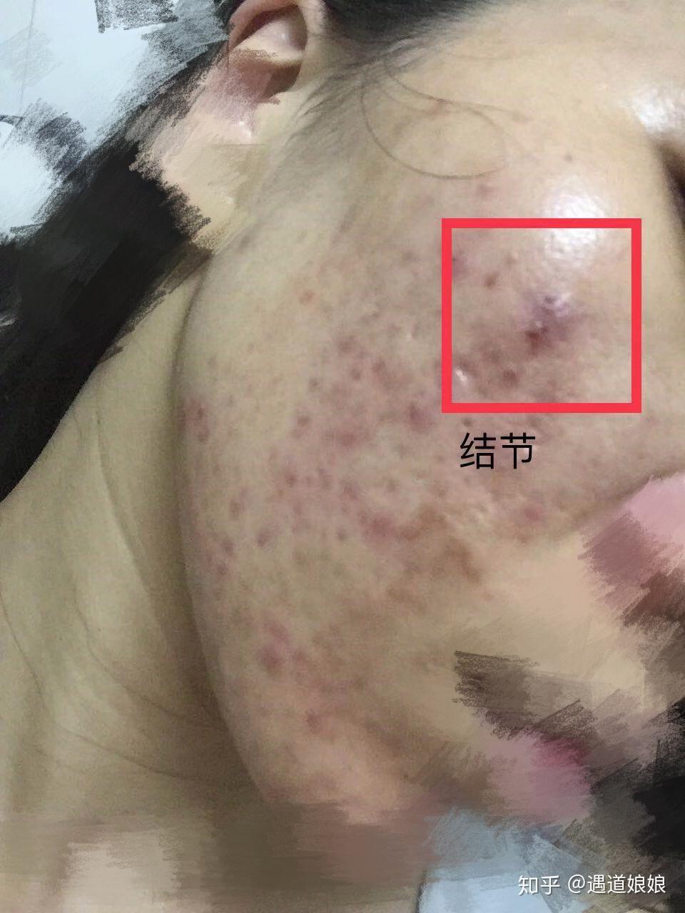 你知道你痘痘的类型吗 闭口型,囊肿型还是凹陷型 各种不同的处理方法和注意事项