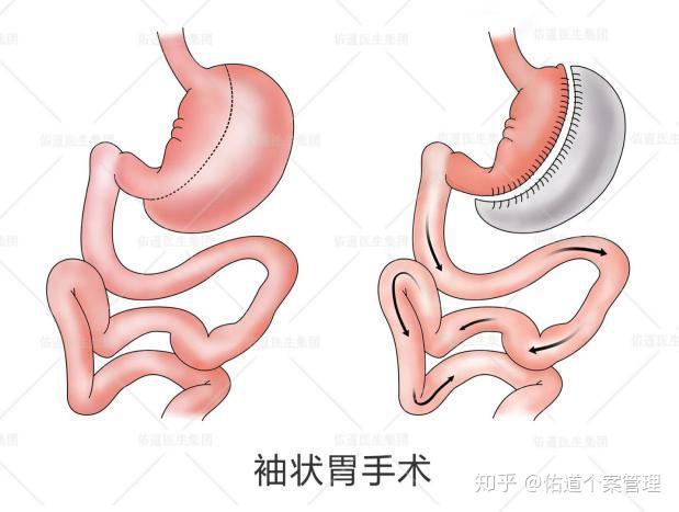 缩胃减肥法正确方式图片