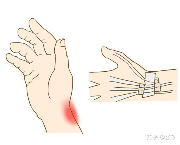 症状 腱鞘炎