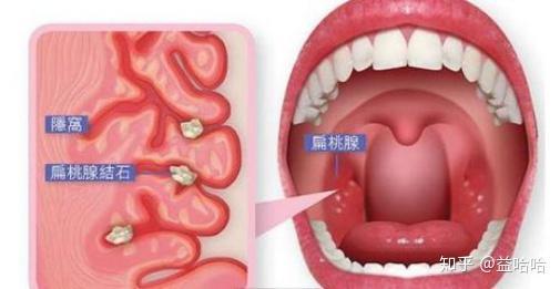 总感觉舌头上有东西_口臭已经十年多了从小学开始印象中只咳出过两次扁桃体结石 ...