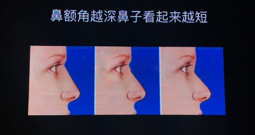 李劲良:做好鼻子要特别强调鼻部美学点