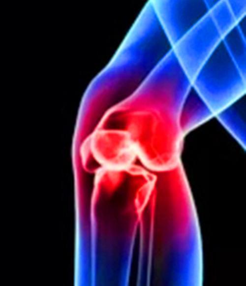 膝盖骨刺_膝关节骨性关节炎自我康复 - 知乎