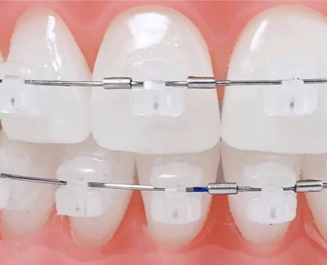 陶瓷自锁牙套_请问正畸大神 陶瓷自锁和传统陶瓷牙套 在外观上有什么区别 ...