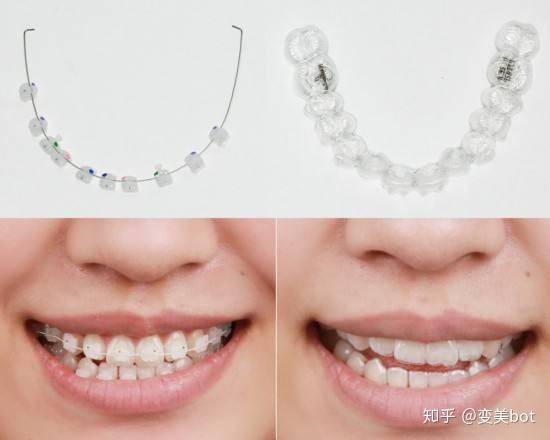 陶瓷自锁牙套_牙齿矫正(正畸)需要多少钱? - 知乎