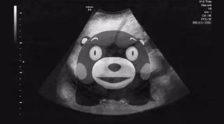 B超报告上的「子宫内膜不均匀」是啥意思?