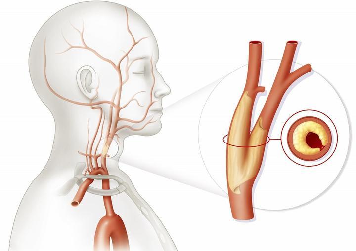 这5种高血压,更容易发生脑中风,如果自己有尽快处理!