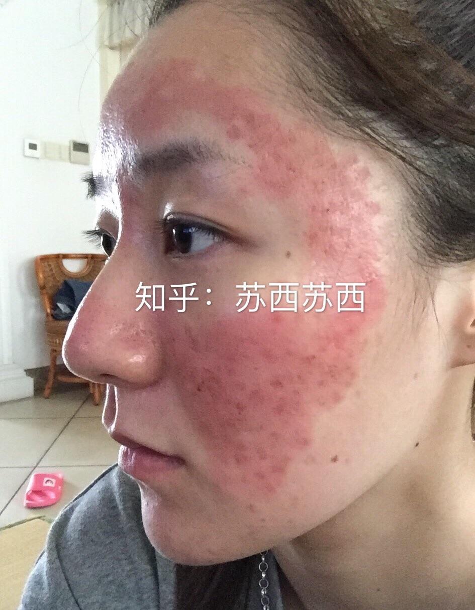 脸上红痘印怎么去除_如何去除脸上的痘印、痘坑? - 知乎