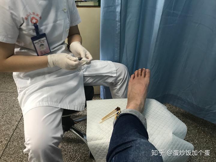我与跖疣抗争的岁月