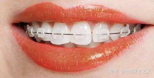 陶瓷自锁牙套_成都地区牙齿矫正多少钱?具体点? - 知乎
