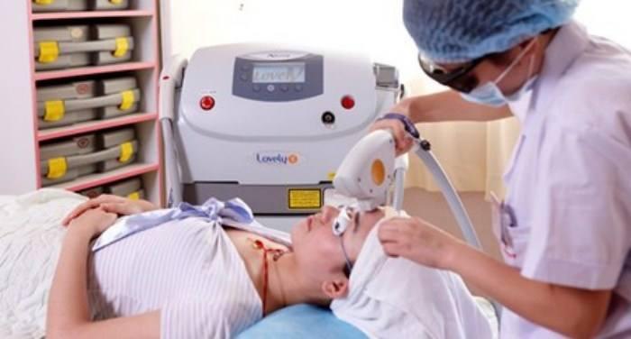 祛痘印激光手术_激光去痘印是种怎样的体验 - 知乎