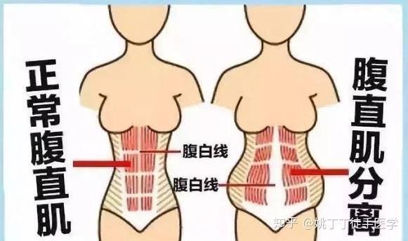 胃下垂 妊娠