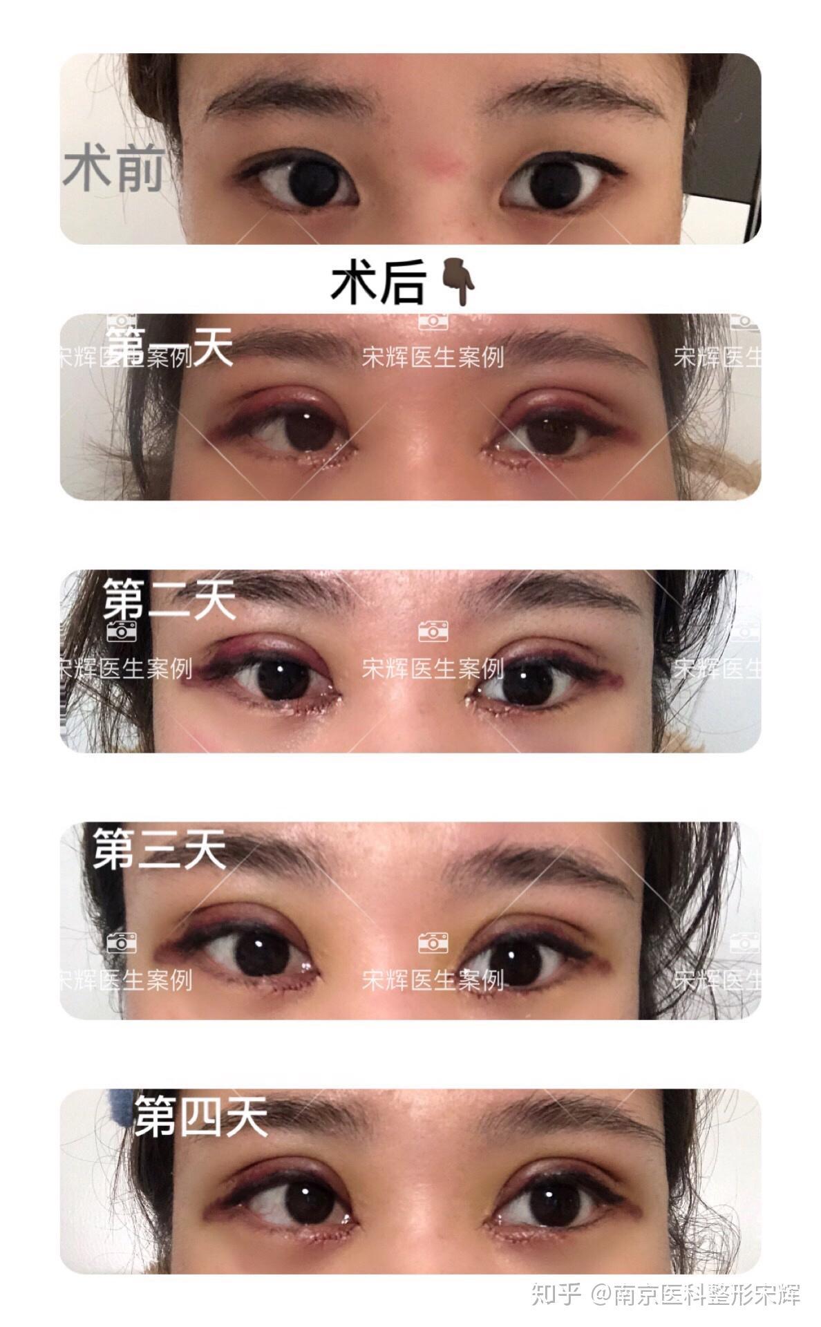 曹海峰专家咨询 - 南京华美医疗整形美容医院 -